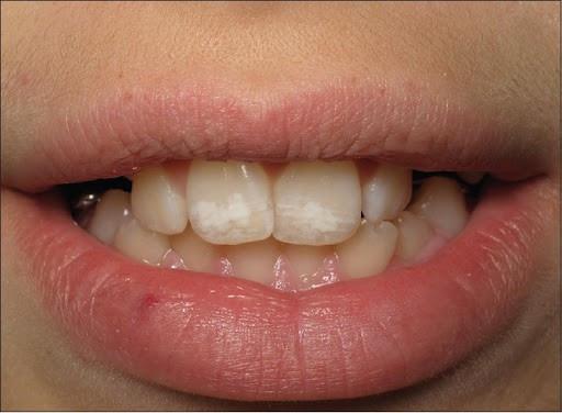 وعلاج بقع الأسنان البيضاء على الأسنان الأمامية أونيلا