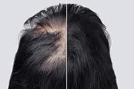 الميزوثيرابي للشعر: هل الميزوثيرابي يوقف تساقط الشعر؟