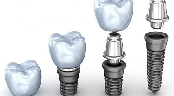 ايهما افضل زراعة الاسنان او الجسر