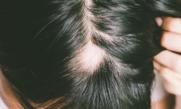 داء الثعلبة: الأعراض والأسباب والعلاج والمخاطر