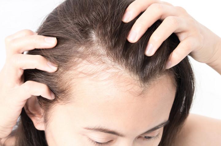 علاج تساقط الشعر بسبب تكيس المبايض في المنزل