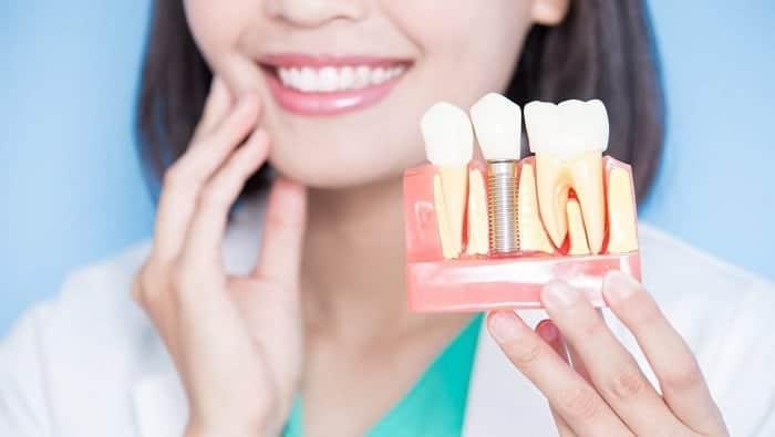 ما يجب عليك معرفتة حول زراعة الأسنان أونيلا