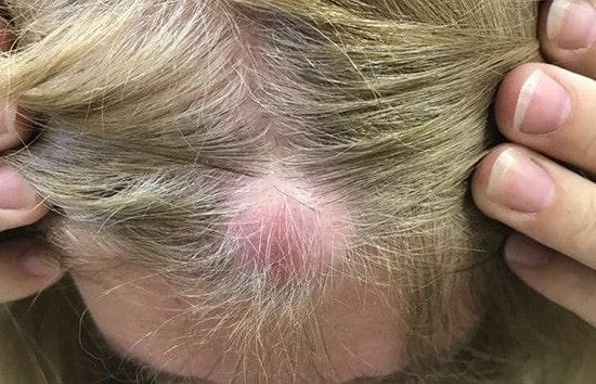 كيف يمكنك علاج كيس بيلار على فروة رأسك؟