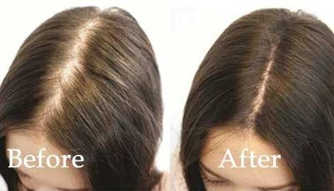 مجربة لتكثيف الشعر وتقويته