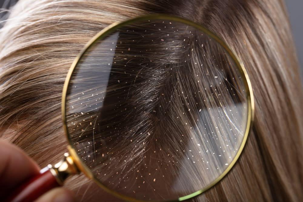 انواع قشرة الشعر وعلاجها
