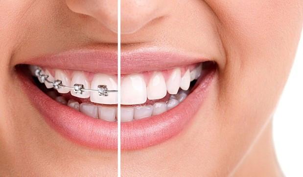 يمكن عمل تقويم الأسنان بعد سن العشرين أونيلا
