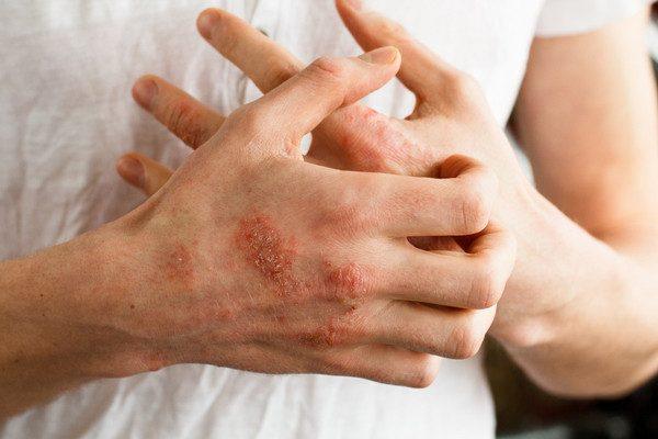 العلاجات المنزلية للأكزيما أو الحكة