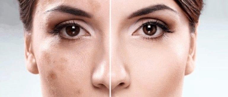 علاج التصبغات الجلدية العميقة وأسبابها