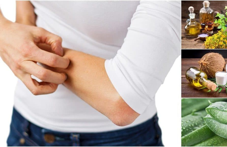 علاج حكة الجسم في المنزل