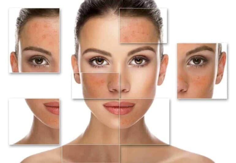 اختبار لمعرفة نوع بشرتك