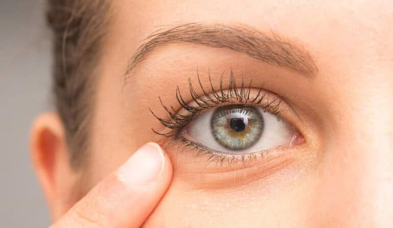 6 طرق للعناية بالبشرة حول العينين
