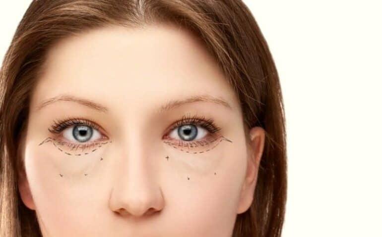 كيفية إزالة الانتفاخات تحت العينين