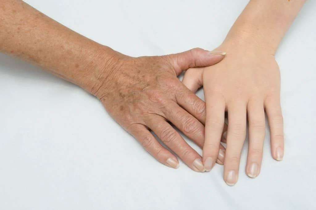 قناع تبييض اليدين وازلة البقع العمرية