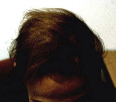 تساقط الشعر الكربي الثانوي لقصور الغدة الدرقية.