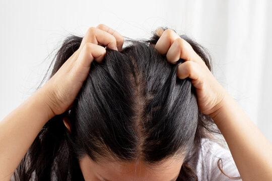 تساقط الشعر الوراثي عند النساء