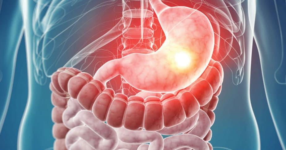 علاجات منزلية لالتهاب المعدة والأمعاء