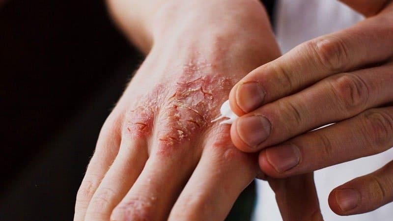 علاجات منزلية لمرض الصدفية