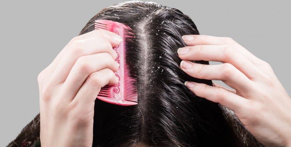 علاج قشرة الشعر بالليمون ..نتيجة مذهلة - مجلة هي