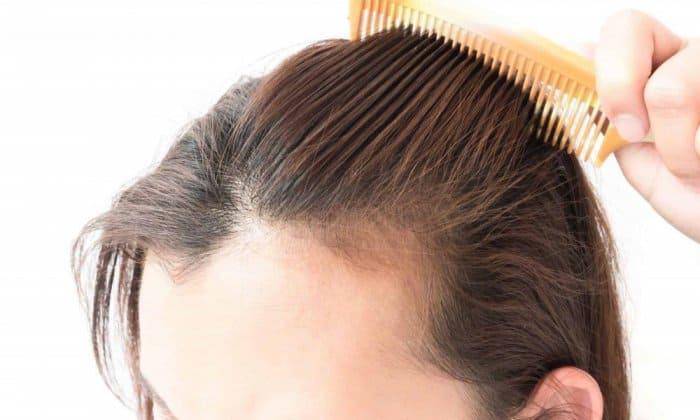تقوية بصيلات الشعر الخفيف - أونيلا