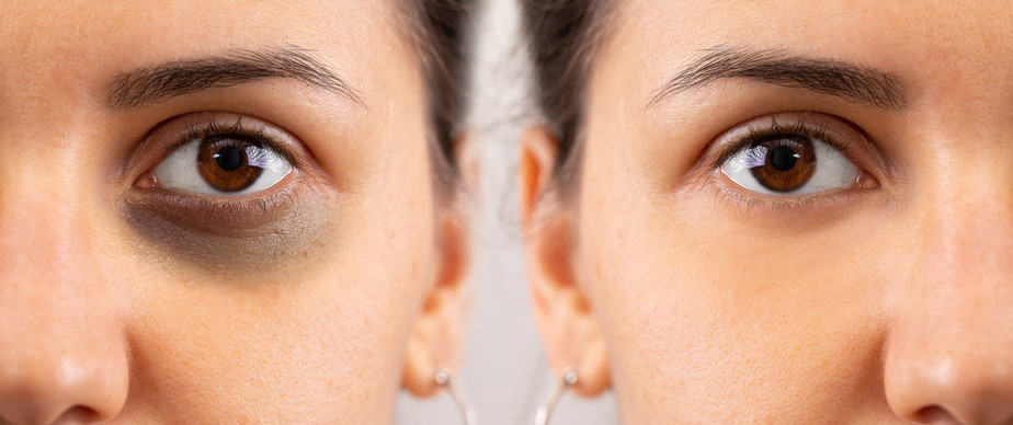 Dark Circles Under Eyes Cause Precations and How to remove
