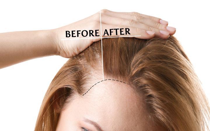 علاج تساقط الشعر بسبب تكيس المبايض - أونيلا