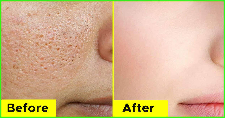 علاج المسامات الواسعة في الوجه نهائياً - أونيلا
