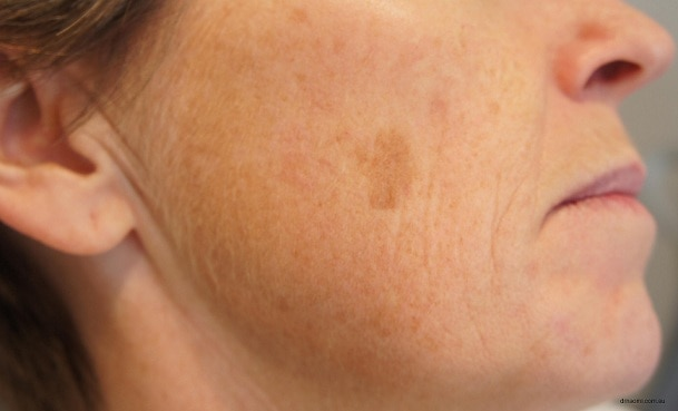 How To Get Rid Of Brown Spots On Face 1 1