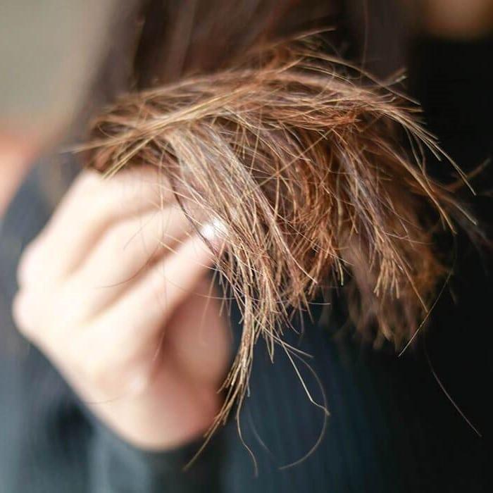 ما هو علاج تقصف الشعر