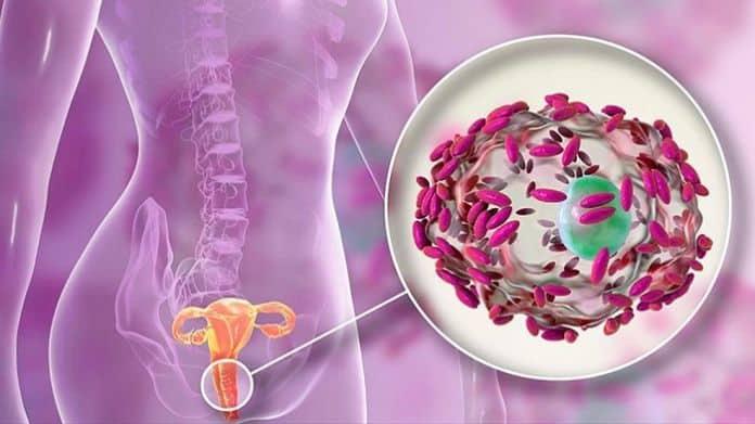 Remedios caseros para la vaginosis 696x3911 1