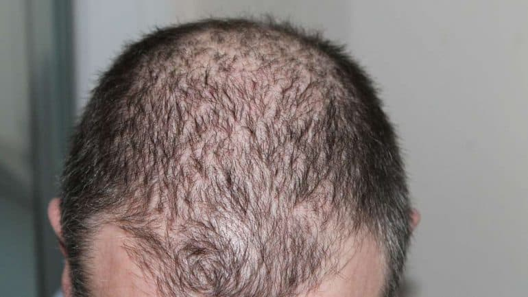 علاج الشعر الخفيف : 10 علاجات منزلية فعالة