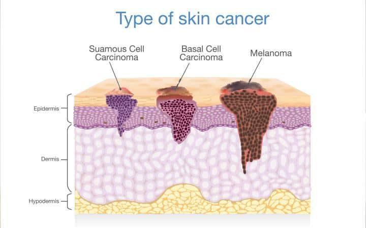 سرطان الجلد: أنواع وأعراض وأسباب وطرق العلاج - أونيلا