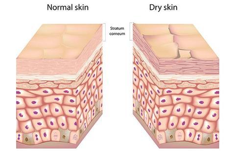 أعراض جفاف الجلد