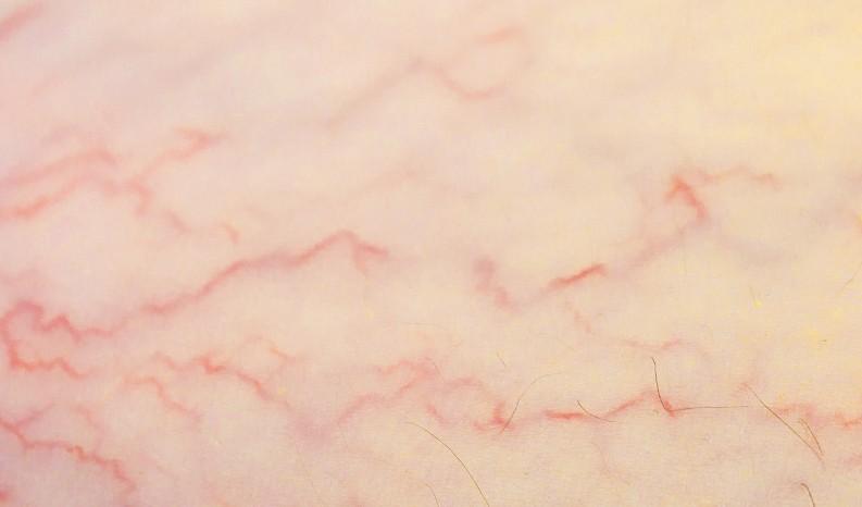 ماهي الشعيرات الدموية - أونيلا