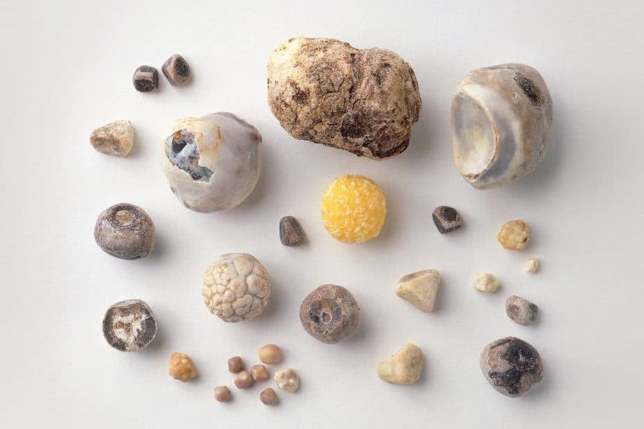 a guide to gallstones rm 1440x8101 1