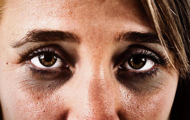 a woman who wonders what causes dark circles under the eyes1