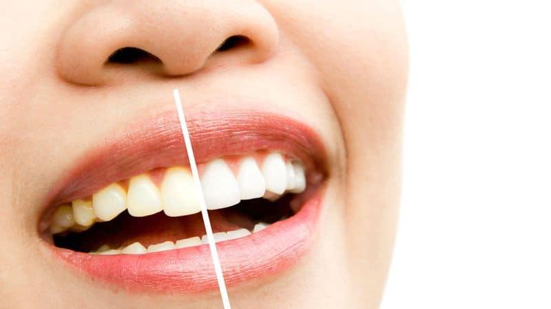 طريقة تبييض الأسنان بالمنزل