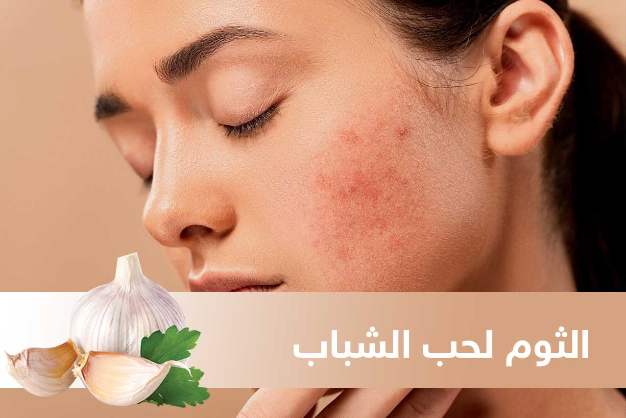 acne 5561750 1280