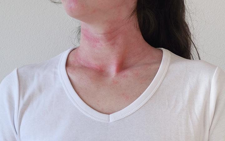 رد فعل حساسية الجلد على عنق الأنثى