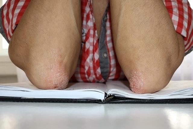 علاج حكة جفاف الجلد - أونيلا