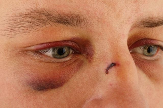كيفية علاج كدمة العين