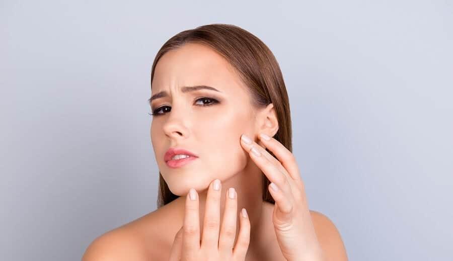 consejos para atenuar las cicatrices del acne 1