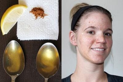 قناع العسل والليمون لتبييض الوجه