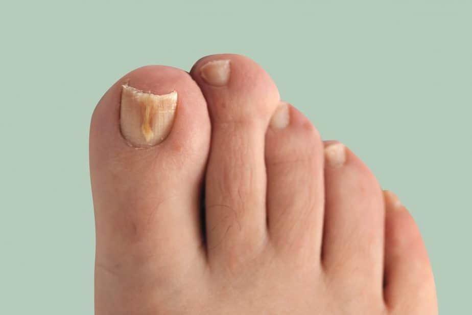 fungal nail lead 181
