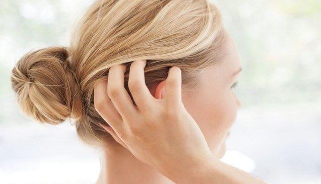 علاج جفاف فروة الرأس بالاعشاب