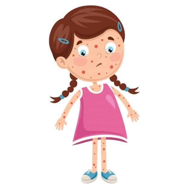 아동 질병의 삽화 | 프리미엄 벡터
