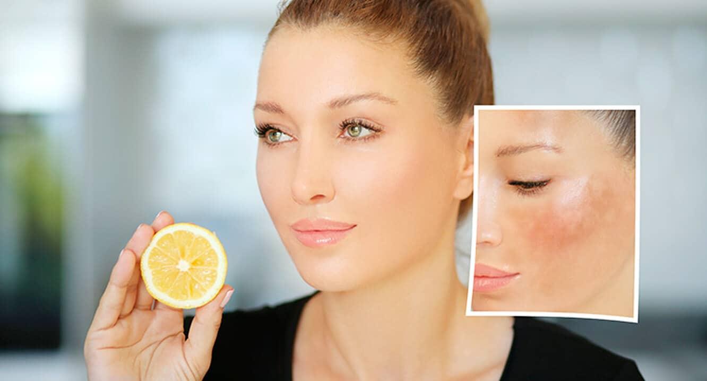 علاج تصبغ مثبت - الليمون