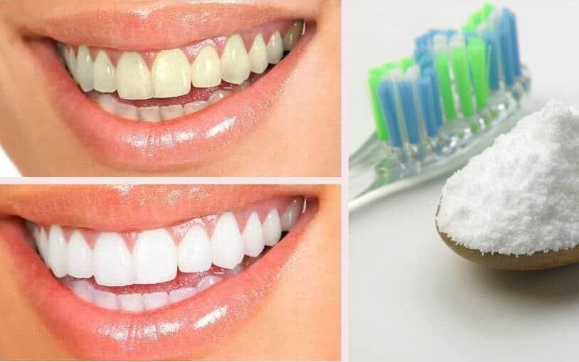 تبييض الاسنان بستخدام صودا الخبز