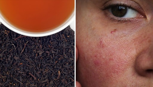 10 Amazing Benefits of Using Black Tea For Skin and Hair - lifeberrys.com