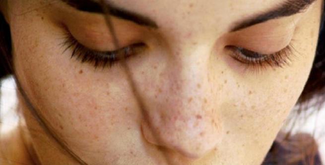 natural remedies age spots 11