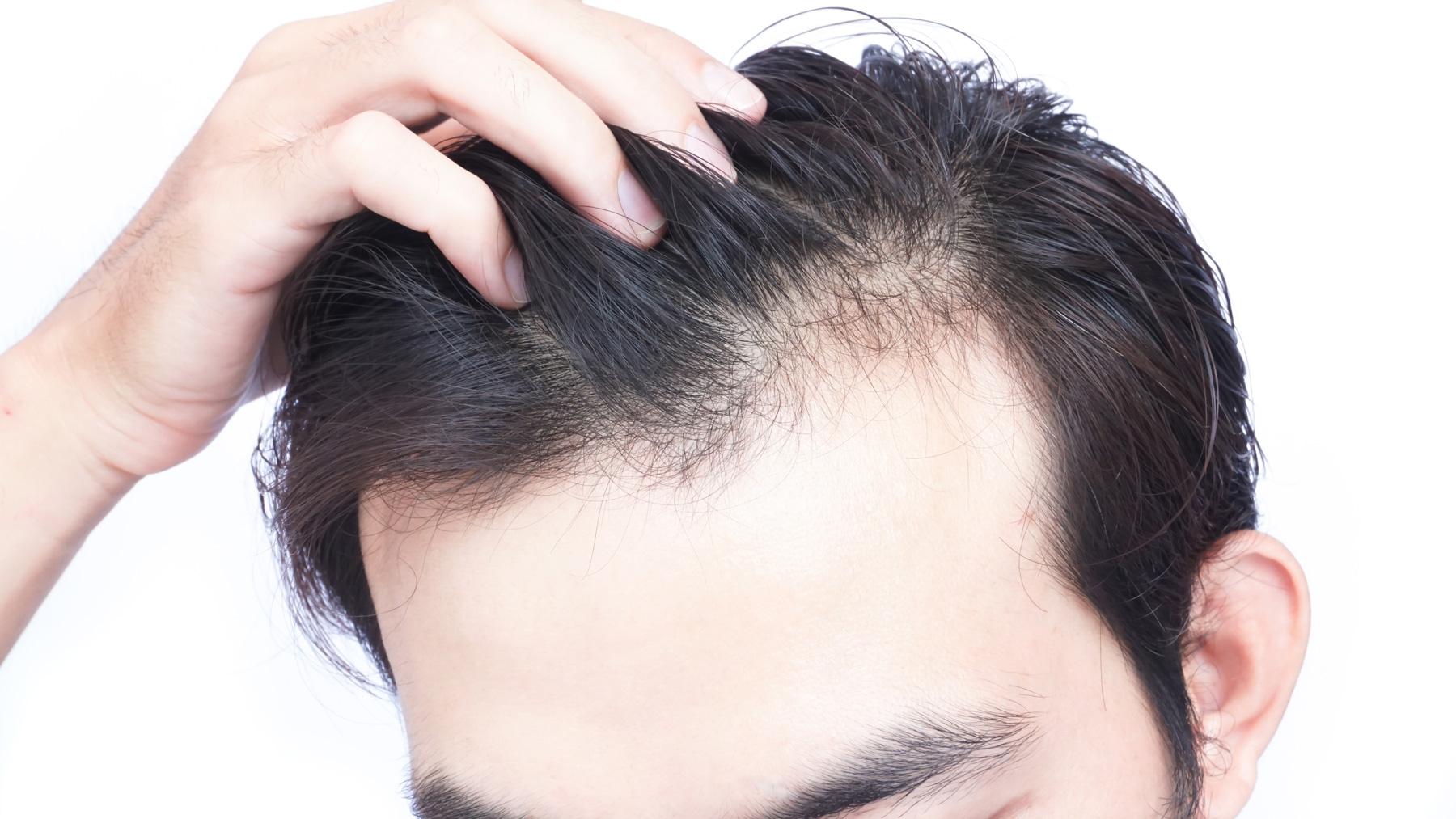 أسباب تساقط الشعر فجأة